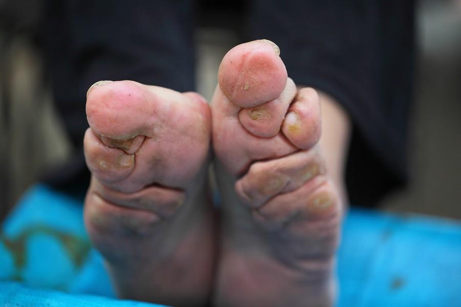中国女性血泪史---大山深处最后的小脚母亲们_图1-5