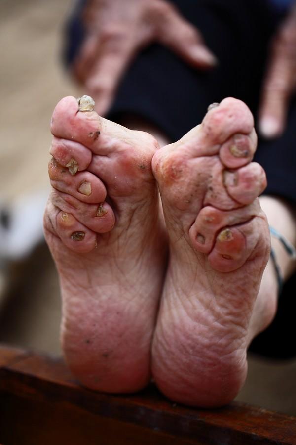 中国女性血泪史---大山深处最后的小脚母亲们_图1-8