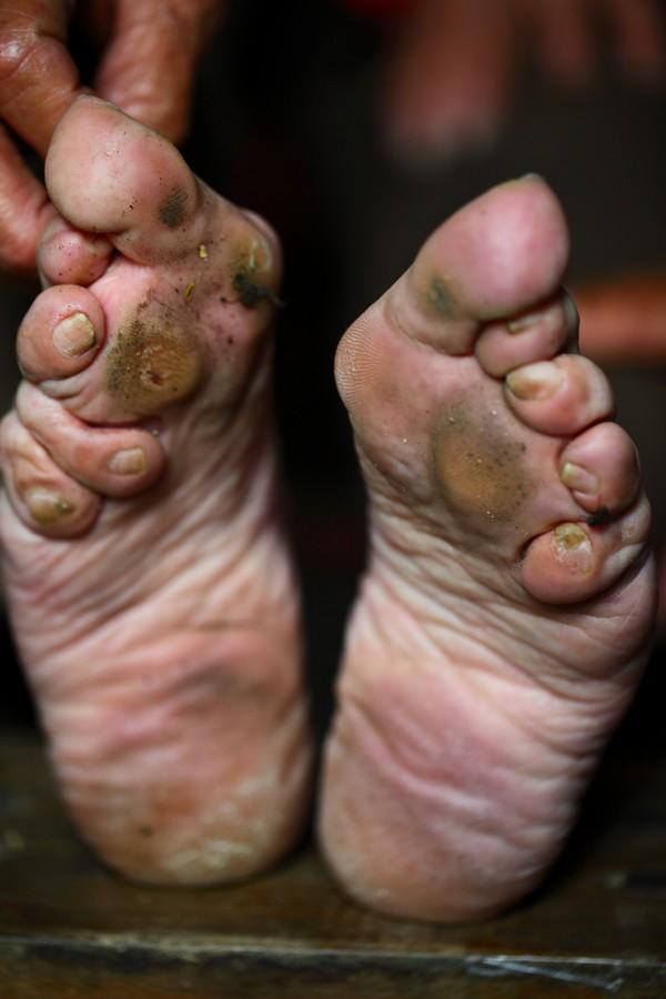 中国女性血泪史---大山深处最后的小脚母亲们_图1-15