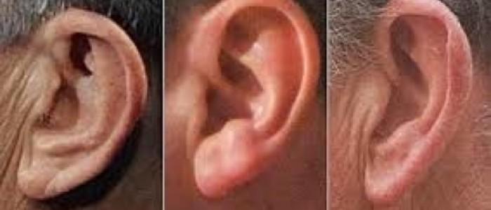 看耳朵知肾气又长寿_图1-3