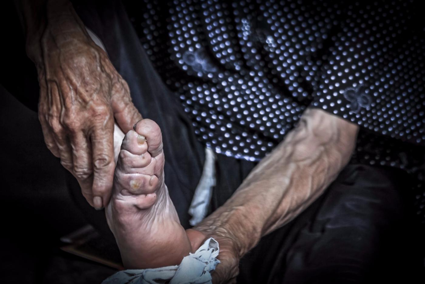 舊社會女人們受到如此摧殘 在大山深處的母親們還飽受如此傷害 ..._圖1-3