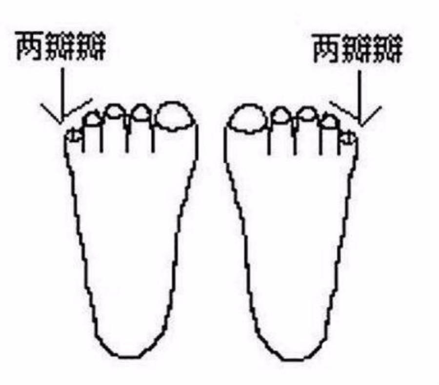 祖源遗传多重要:老山西人的移民的后代人的小脚趾 为什么是两瓣的  骨碌的 ..._图1-2