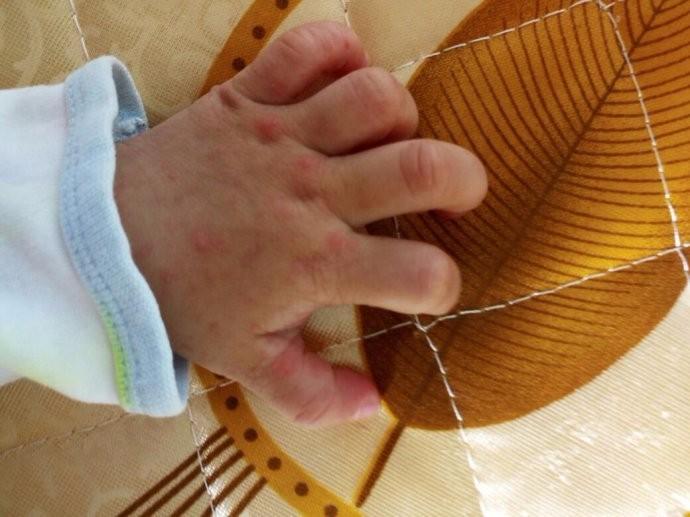春天夏天是手足口病高发季节 家长们要知道如何做好预防措施 ..._图1-2