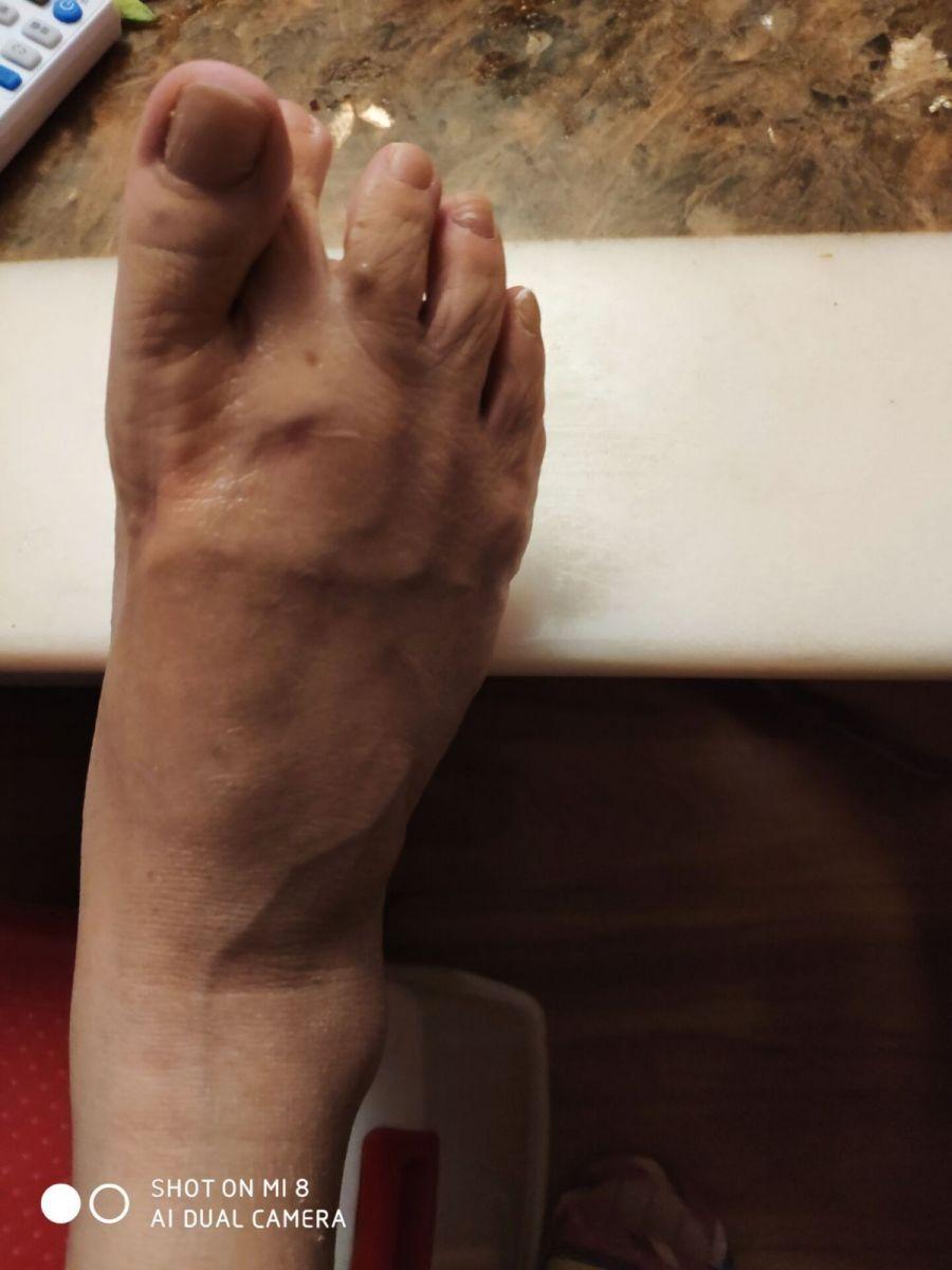 脚抽筋_图1-1
