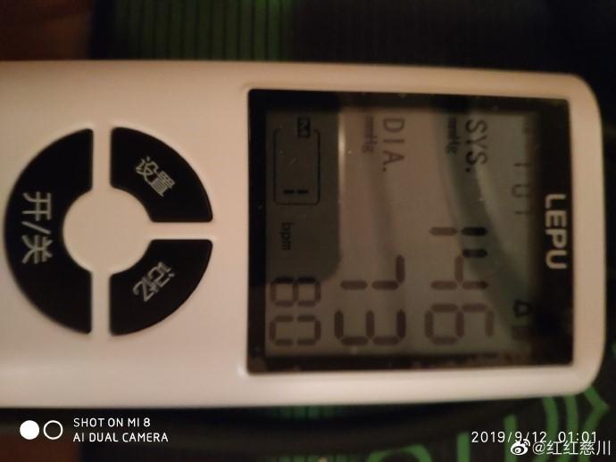 人为的高血压,早上都是127。现在是149。_图1-3