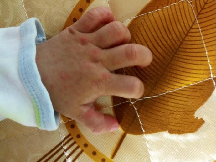 手足口病是由肠道病毒(主要是EV71、柯萨奇病毒)引起的急性传染病 ..._图1-2