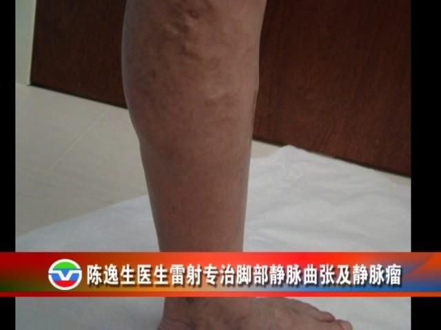 【视频】陈逸生医生镭射专治脚部静脉曲张及静脉瘤